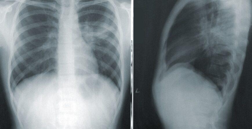 puede-quedar-dano-pulmonar